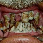 Les dents après un passage chez le gentil dentiste Docteur Cigarette!